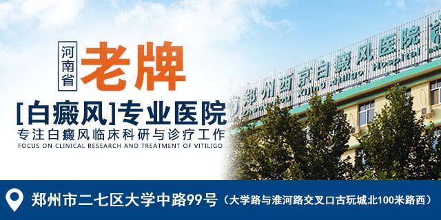郑州西京,老牌白癜风专业医院!